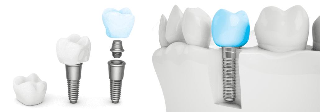 Implant dentaire - Parodontiste à Montréal